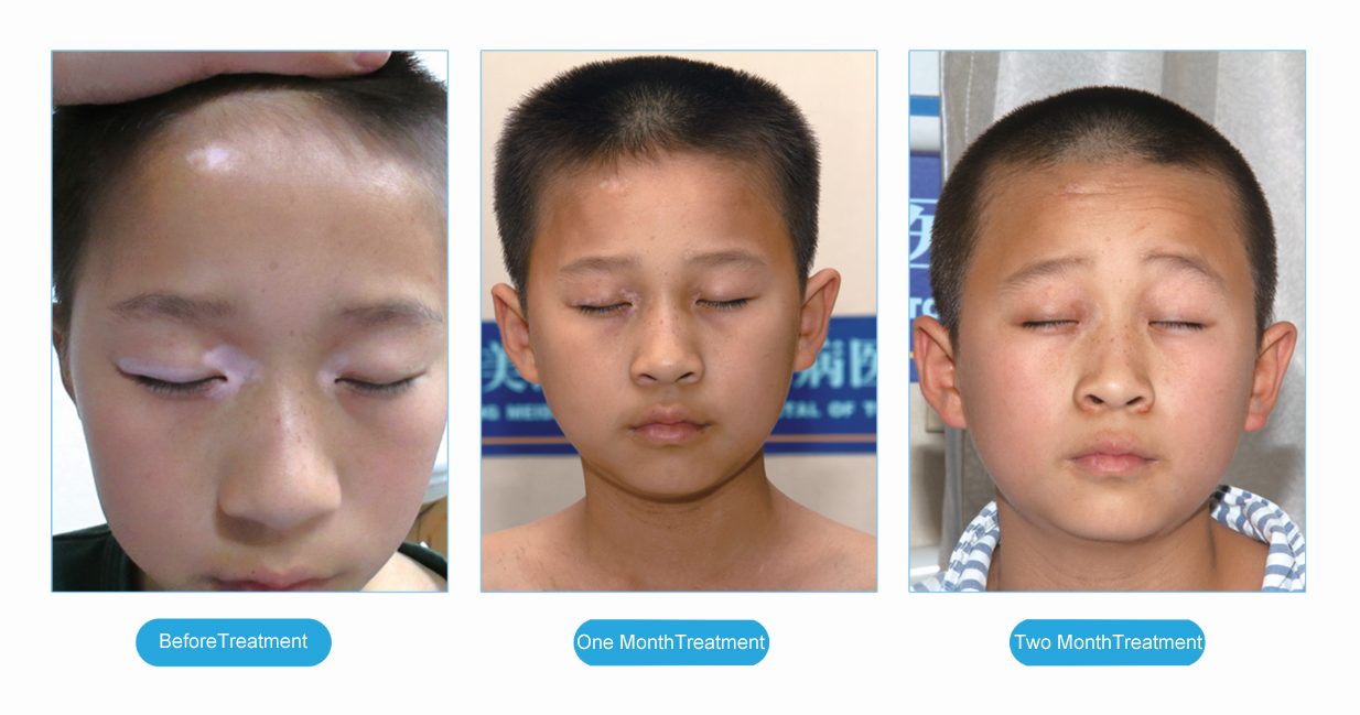 Early Symptoms Of Vitiligo In Children Vitiligo Cure Treatment