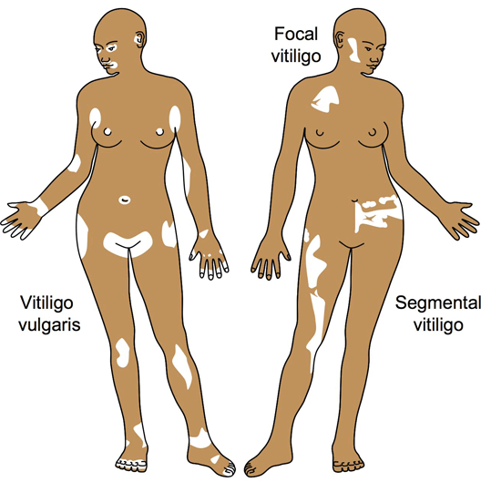 Symptoms Of Vitiligo Vitiligo Cure Treatment