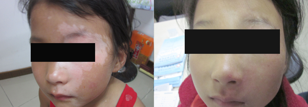 Early Symptoms Of Vitiligo Vitiligo Cure Treatment