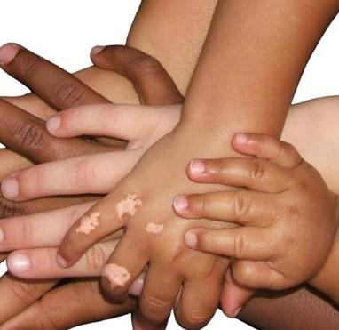 Vitiligo Symptoms Vitiligo Cure Treatment